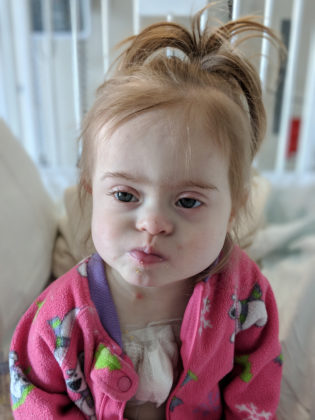 Our World Fell Apart When We Learned Our Beautiful Daughter With Down Syndrome Had Leukemia - our world fell apart when we learned our beautiful down syndrome daughter had leukemia mindy guymon 14 315x420