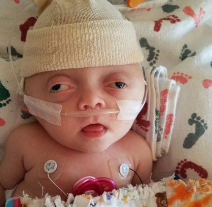 Our Daughter Had Her Skull Removed At Just Five Weeks Old – She Is Brave, Beautiful And We Couldn't Love Her More - Amber Thibault 2 430x420