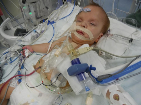 Our Tiny Son's Condition Is So Rare, It Doesn't Have A Name - Kassy Stuart 080858 563x420