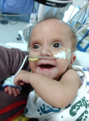 Our Tiny Son's Condition Is So Rare, It Doesn't Have A Name - Kassy Stuart 081019 309x420