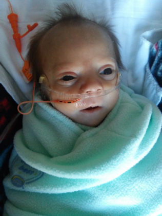 Our Tiny Son's Condition Is So Rare, It Doesn't Have A Name - Kassy Stuart 074724 316x420