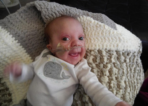 Our Tiny Son's Condition Is So Rare, It Doesn't Have A Name - Kassy Stuart 075857 586x420